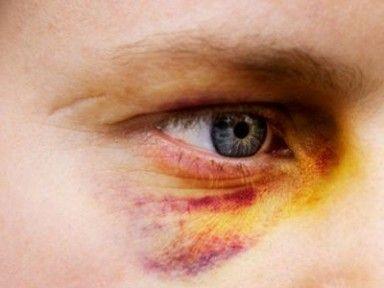 Тяжкий вред здоровью по статье 111 УК РФ: состав преступления и ответственность за нанесение телесных повреждений