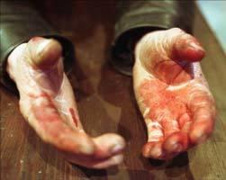 Причинение тяжкого вреда здоровью повлекшее смерть: состав преступления, квалификация и меры ответственности